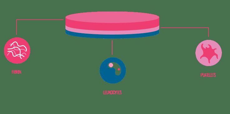 3-layer autologous wound patch