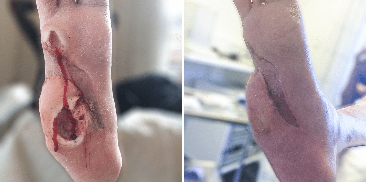 Treating foot ulcers