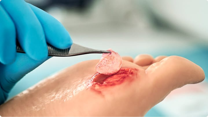 Applying a 3C Patch® on a non-healing wound